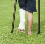 The odor left over from wearing a cast can be unpleasant.
