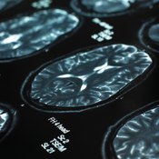Personality tests show what brain scans cannot.