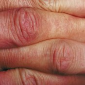 Be sure that your swollen knuckles are not part of an underlying problem.