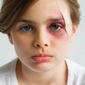 Bruise cream helps bruises heal faster.
