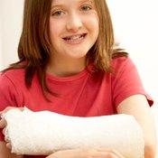 Plaster immobilizes broken bones.