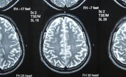 Specialties of the Right Side of the Brain