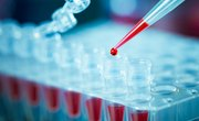 What Is the Function of a Tris Buffer in DNA Extraction?