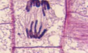 How to Identify Stages of Mitosis Within a Cell Under a Microscope