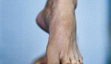 Exercises to Straighten a Hammer Toe