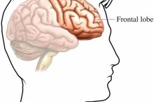 Frontal Lobe Stroke Symptoms