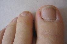 How to Treat Toenail Infection With Apple Cider Vinegar