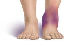 How to Reduce Swelling with Home Remedies