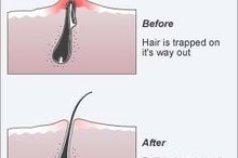 How to Get Rid of an Infected Ingrown Hair