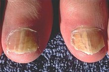 How to Use Bleach for Curing Toenail Fungus