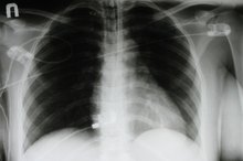 What Causes Wheezing in the Chest?
