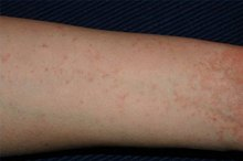 Signs & Symptoms of Human Skin Mites