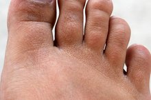 Common Toenail Problems