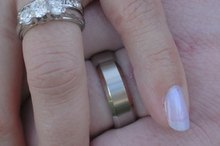 How to Remove a Wedding Band Indentation