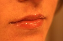 How to Get Rid of Angular Cheilitis