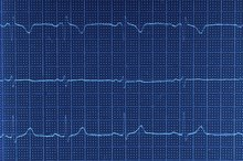 Abnormal EKG Waves