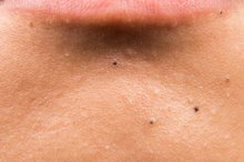 How to Reduce Black Spots on the Face