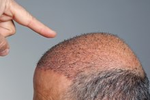 Dangers of Hair Transplants