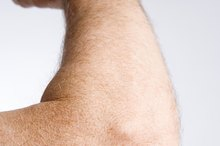 Elbow Skin Pain