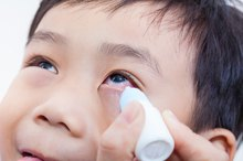 Causes of White Eye Discharge