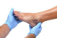 Degrees of Ankle Sprain
