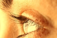How to Get Rid of Yellow Upper Eyelids