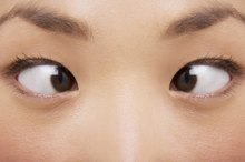Eye Exercises for Convergence Insufficiency