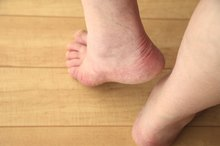 Vitamin D Deficiency & Plantar Fasciitis