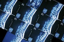 Side Effects of a Bone Scan