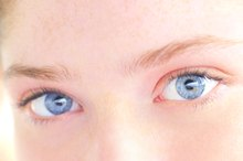 What Is the Meaning of Red Eyes & Dark Circles Under the Eyes in Children?
