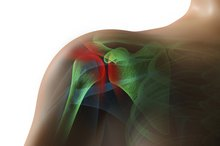 Symptoms of a Pinched Tendon in the Rotator Cuff