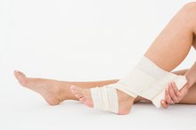 How Long Does it Take to Rehabilitate a Snapped Achilles Tendon?