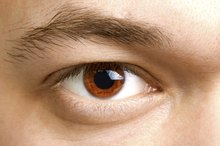 What Eye Problems are Typical With Crohn's Disease?