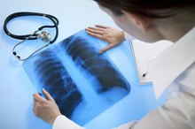 What Are the Effects of Tuberculosis on Lung Tissue?