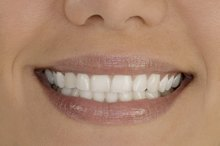 Best Products for Teeth Whitening