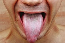 What Are the Causes of Tongue Fungus?