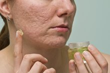 How to Get Rid of Acne Scars Quickly and Naturally