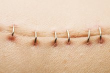 How Long Do Surgical Staples Stay In?