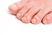 How to Trim a Toenail Correctly