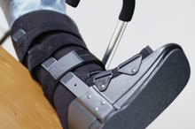 Rehabilitation of a Fractured Heel Bone