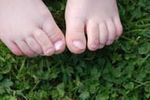 How to Care for a Broken Toenail