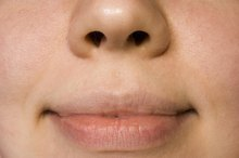 How to Treat a Swollen Lip Caused by Trauma