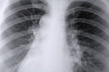 What Are the Causes of Infiltration of Lungs?