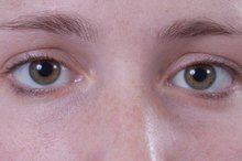 Can You Use Preparation H for Dark Under-Eye Circles?