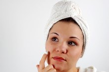 How to Get Rid of a Big Blackhead That Hurts