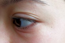What Are the Causes of a Sore Swollen Eyelid?