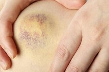 Can Poor Diet Cause Easy Bruising?