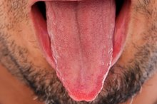 How to Heal Tongue Sores