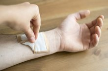 How to Remove Gauze That Sticks to Wounds