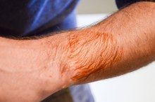 How to Remove Betadine Stains From Skin